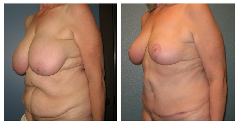 breast reduction surgery info