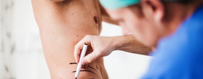male plastic surgery trends