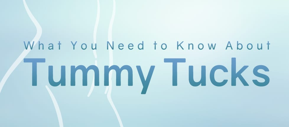 What you need to know about tummy tucks